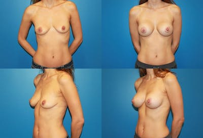 Breast Augmentation Gallery - Patient 2158611 - Image 1