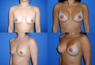 Breast Augmentation Gallery - Patient 2158612 - Image 1