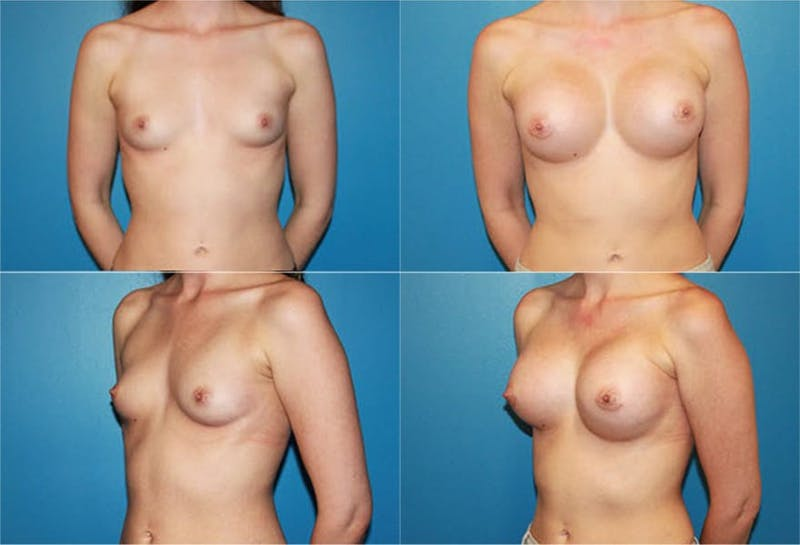 Breast Augmentation Gallery - Patient 2158613 - Image 1
