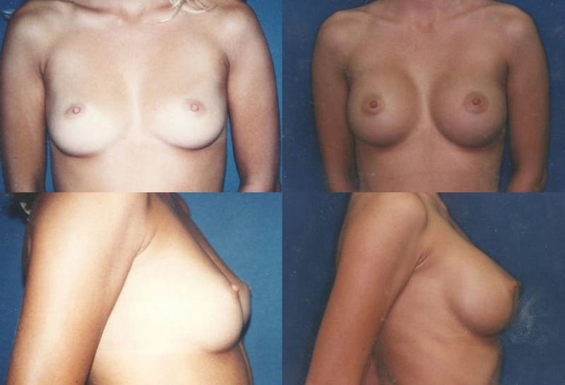 Breast Augmentation Gallery - Patient 2158614 - Image 1