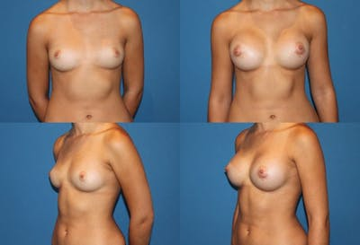 Breast Augmentation Gallery - Patient 2158616 - Image 1