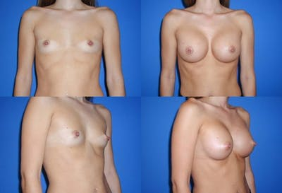 Breast Augmentation Gallery - Patient 2158617 - Image 1