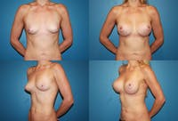 Breast Augmentation Gallery - Patient 2158618 - Image 1
