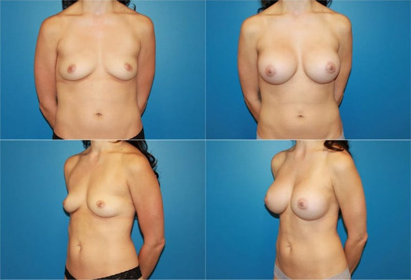Breast Augmentation Gallery - Patient 2158619 - Image 1
