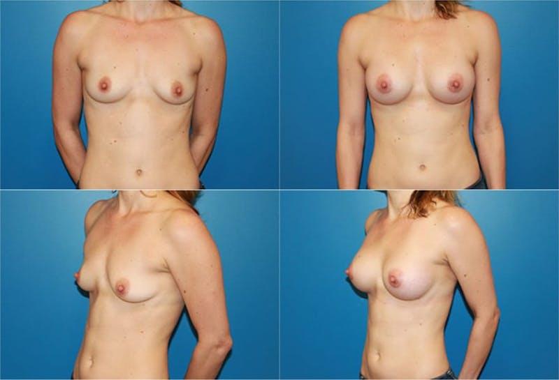 Breast Augmentation Gallery - Patient 2158621 - Image 1