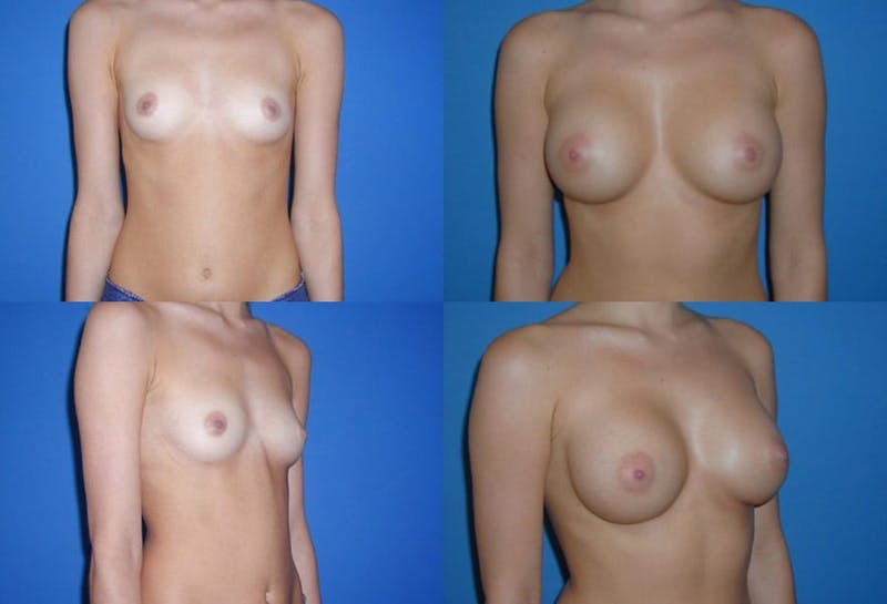 Large C Natural Shaped Breast Gallery - Patient 2387952 - Image 1
