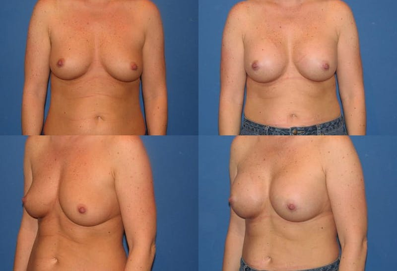 Large C Natural Shaped Breast Gallery - Patient 2387953 - Image 1
