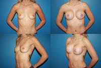 Breast Augmentation Gallery - Patient 2158626 - Image 1