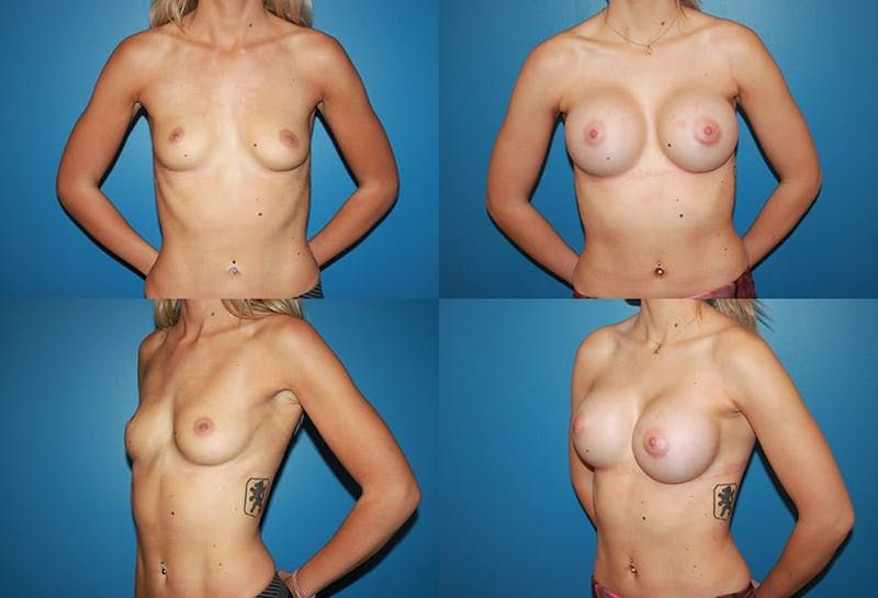 Large C Round Breast Gallery - Patient 2387997 - Image 1