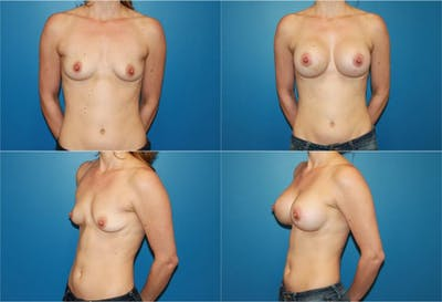 Breast Augmentation Gallery - Patient 2158627 - Image 1