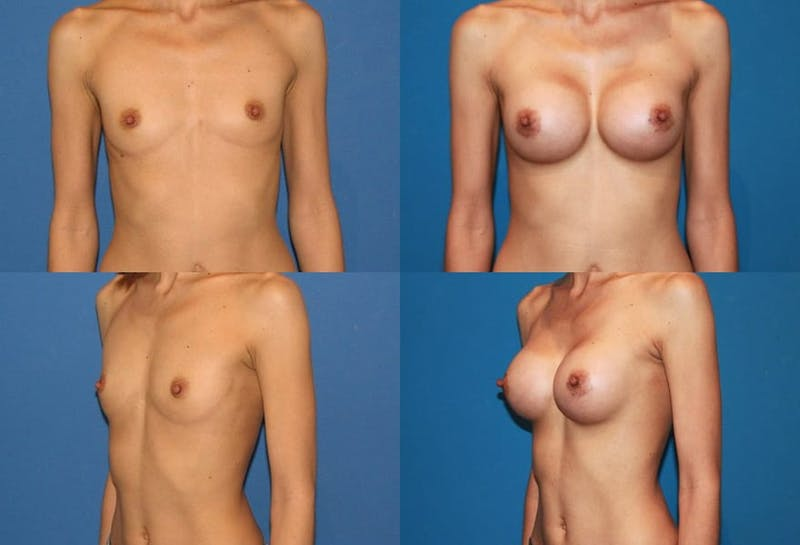 Breast Augmentation Gallery - Patient 2158628 - Image 1