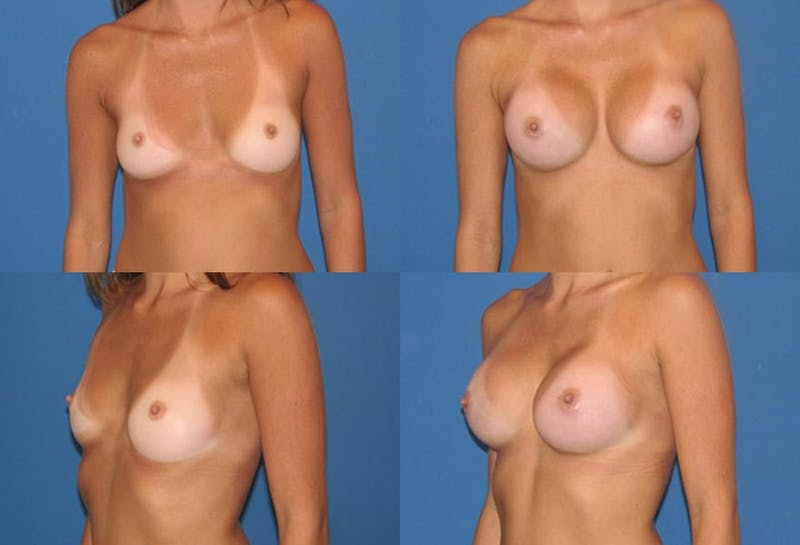 Large C Round Breast Gallery - Patient 2388000 - Image 1