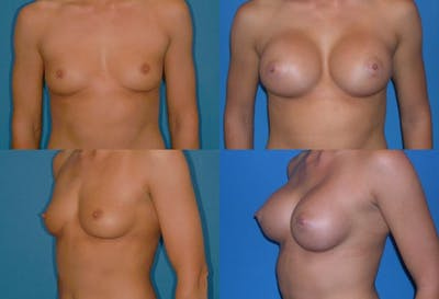 Breast Augmentation Gallery - Patient 2158632 - Image 1