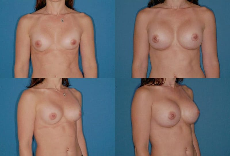Breast Augmentation Gallery - Patient 2158633 - Image 1