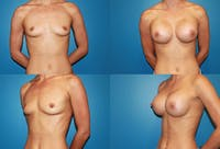Breast Augmentation Gallery - Patient 2158634 - Image 1
