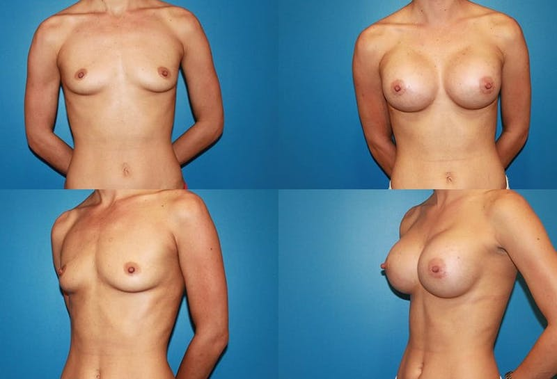 Large C Round Breast Gallery - Patient 2388003 - Image 1