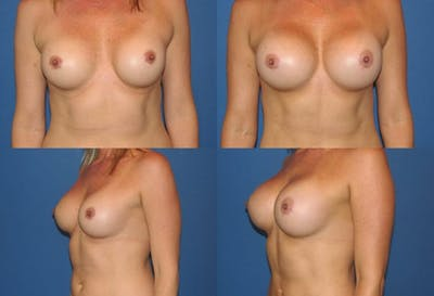 Breast Augmentation Gallery - Patient 2158635 - Image 1