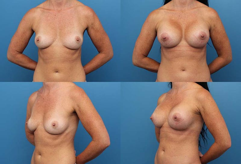 Breast Augmentation Gallery - Patient 2158636 - Image 1