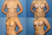 Breast Augmentation Gallery - Patient 2158637 - Image 1