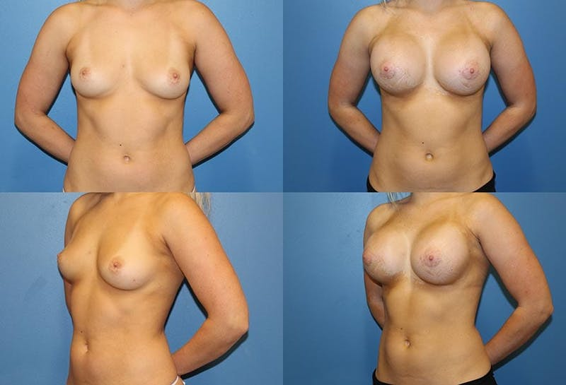 D Cup Breast Gallery - Patient 2388081 - Image 1