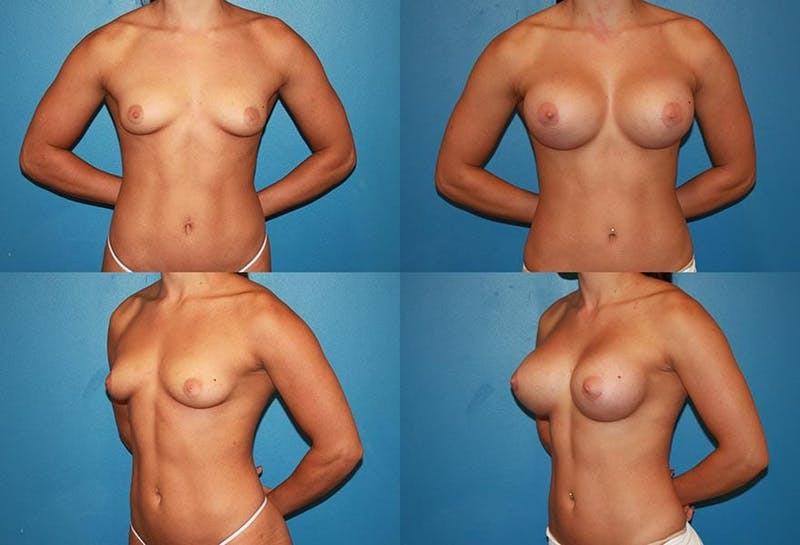 D Cup Breast Gallery - Patient 2388082 - Image 1