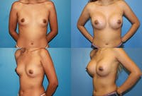 Breast Augmentation Gallery - Patient 2158639 - Image 1