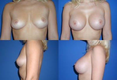D Cup Breast Gallery - Patient 2388084 - Image 1