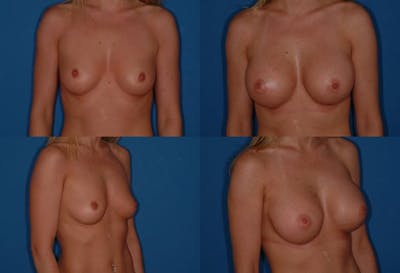 D Cup Breast Gallery - Patient 2388085 - Image 1