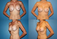 Breast Lift Gallery - Patient 2158644 - Image 1