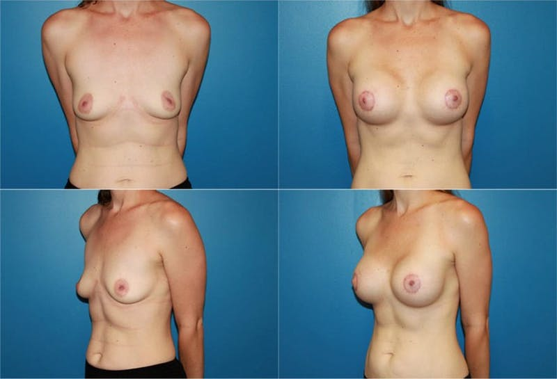 Breast Lift Gallery - Patient 2158645 - Image 1