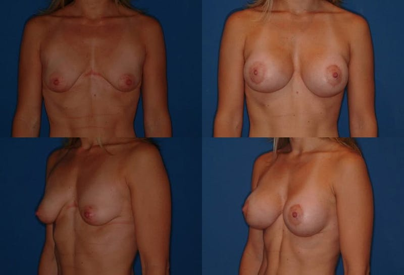 Breast Lift Gallery - Patient 2158646 - Image 1