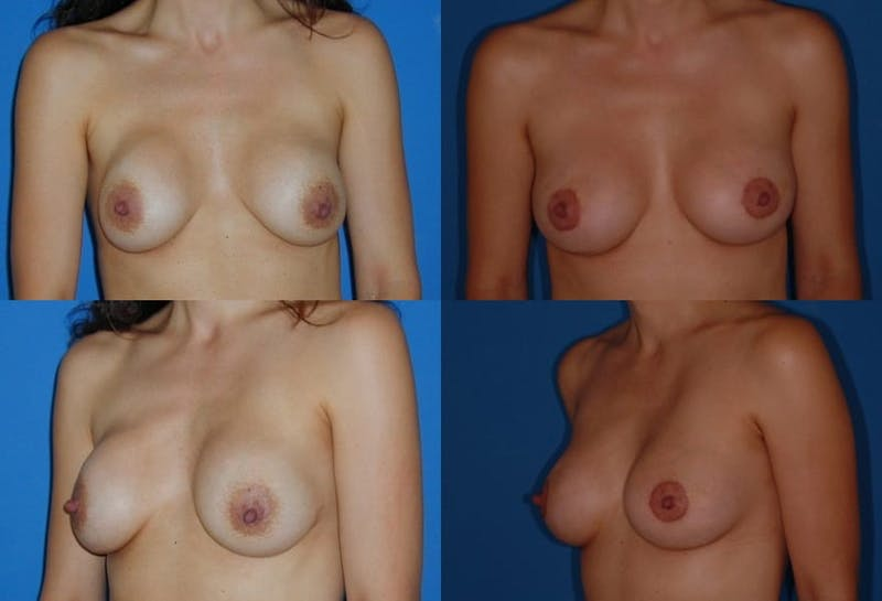 Breast Lift Gallery - Patient 2158647 - Image 1