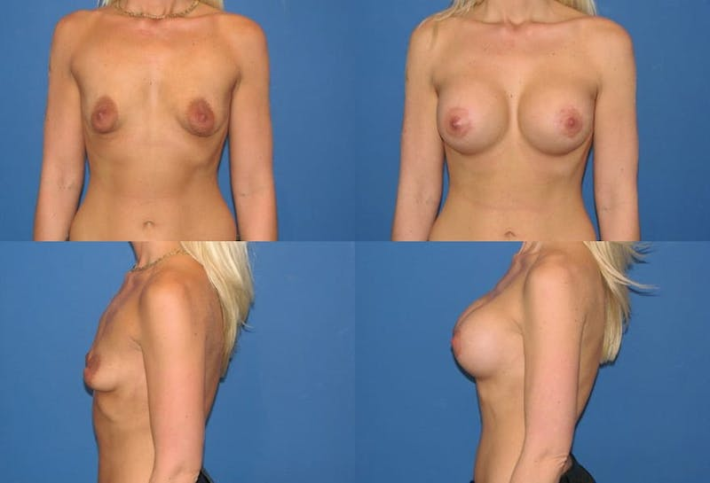 Breast Lift Gallery - Patient 2158648 - Image 1