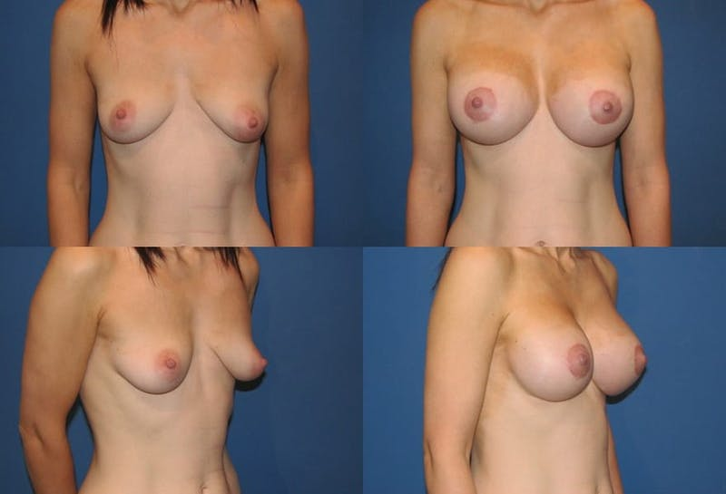 Breast Lift Gallery - Patient 2158649 - Image 1