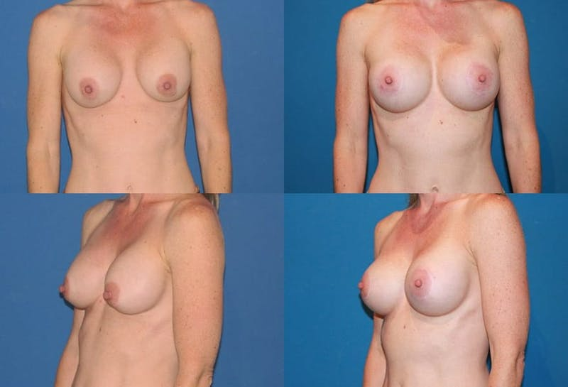 Breast Lift Gallery - Patient 2158651 - Image 1