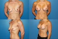 Breast Lift Gallery - Patient 2158653 - Image 1