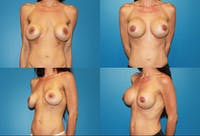 Breast Lift Gallery - Patient 2158654 - Image 1
