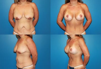 Lollipop Breast Lift with Implants Gallery - Patient 2388590 - Image 1
