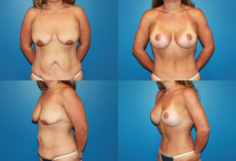 Breast Lift Gallery - Patient 2158655 - Image 1