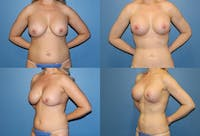 Lollipop Breast Lift with Implants Gallery - Patient 2388591 - Image 1