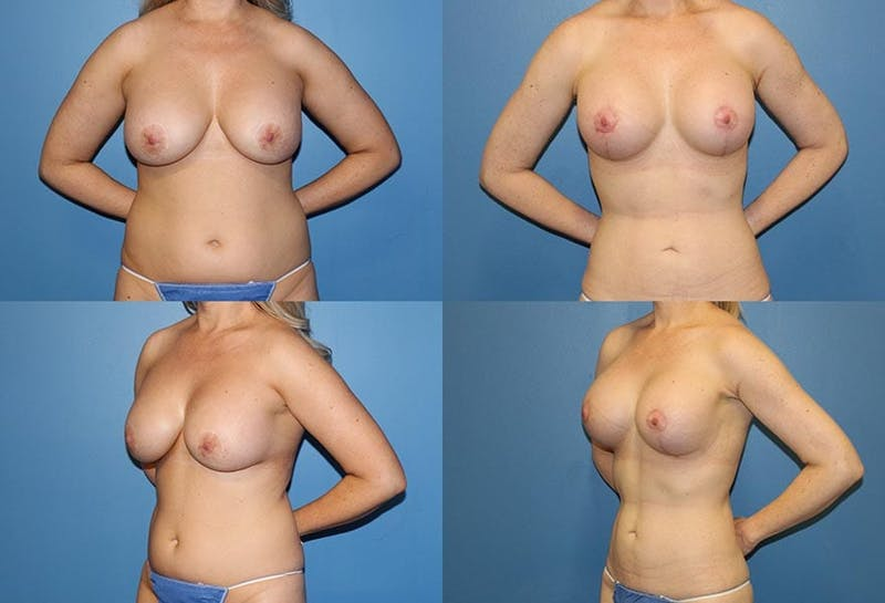 Breast Lift Gallery - Patient 2158656 - Image 1