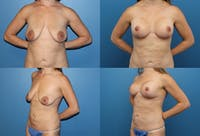 Lollipop Breast Lift with Implants Gallery - Patient 2388592 - Image 1