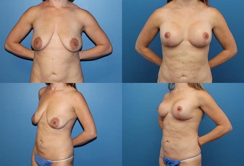 Breast Lift Gallery - Patient 2158657 - Image 1