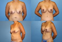 Lollipop Breast Lift with Implants Gallery - Patient 2388593 - Image 1