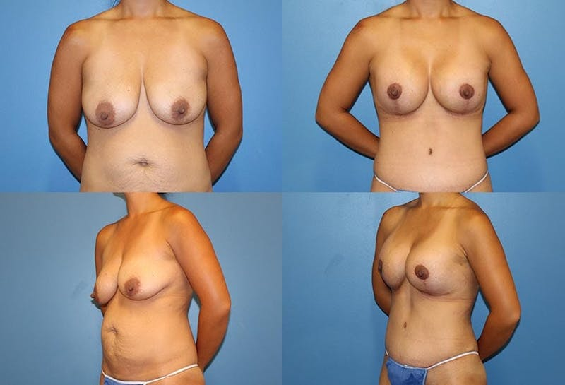 Breast Lift Gallery - Patient 2158658 - Image 1