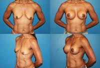 Breast Lift Gallery - Patient 2158659 - Image 1