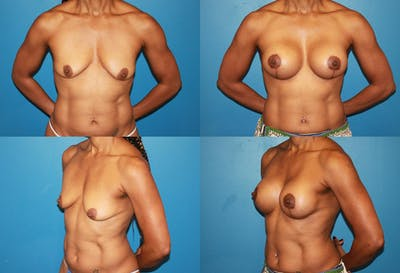 Lollipop Breast Lift with Implants Gallery - Patient 2388594 - Image 1
