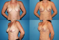 Lollipop Breast Lift with Implants Gallery - Patient 2388595 - Image 1