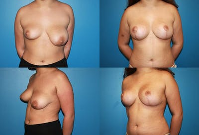 Lollipop Breast Lift with Implants Gallery - Patient 2388597 - Image 1
