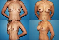 Breast Lift Gallery - Patient 2158663 - Image 1